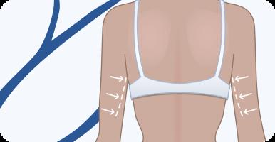 delmo-cirurgias-corporais-dermolipectomia-braco-mini