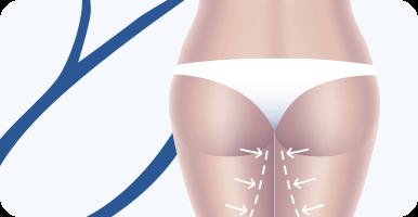 delmo-cirurgias-corporais-dermolipectomia-coxa-mini