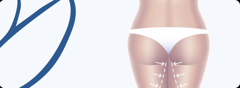 Dermolipectomia de Coxas