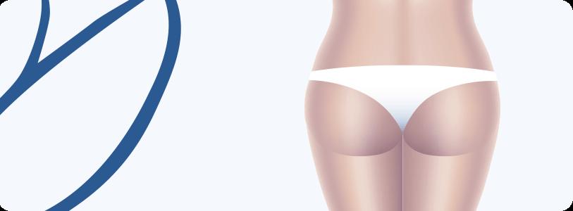Prótese de Glúteos (Gluteoplastia)