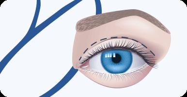 delmo-cirurgias-faciais-blefaroplastia-mini