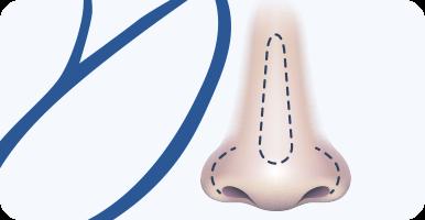 delmo-cirurgias-faciais-rinoplastia-mini