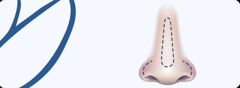 Cirurgia do Nariz (Rinoplastia)