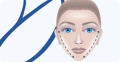 delmo-cirurgias-faciais-ritidoplastia-mini