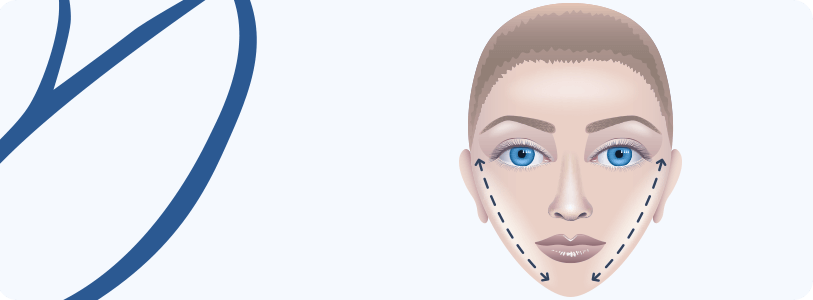 Cirurgia da Face (Ritidoplastia)
