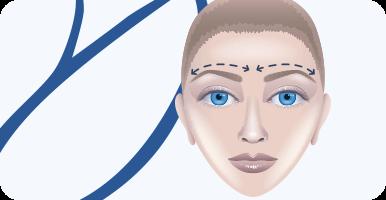 delmo-cirurgias-faciais-suspensao-superciliar-mini
