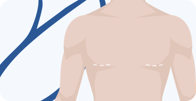 delmo-cirurgias-mama-ginecomastia-mini