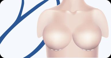 delmo-cirurgias-mama-mamoplastia-mini
