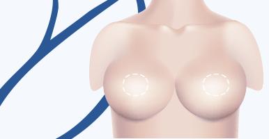 delmo-cirurgias-mama-mastopexia-mini