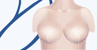 delmo-cirurgias-mama-reducao-mini
