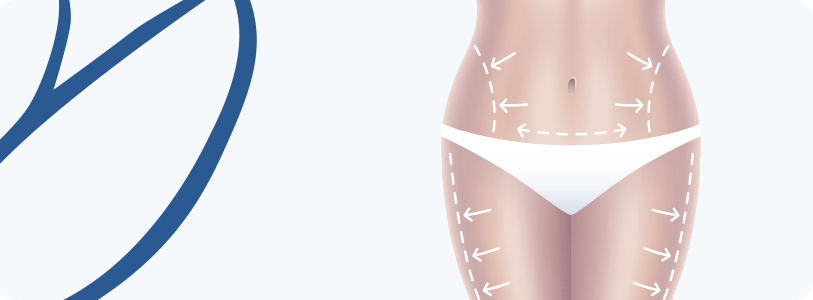 Cirurgia Pós-bariatricas
