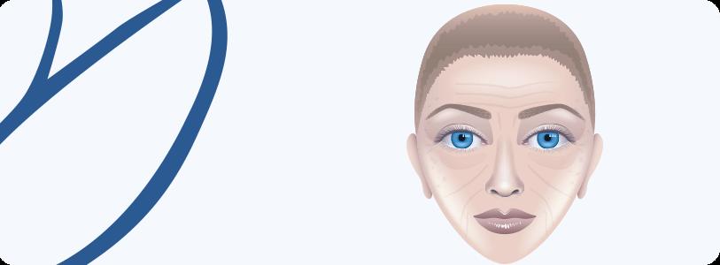 Rejuvenescimento Facial com Laser